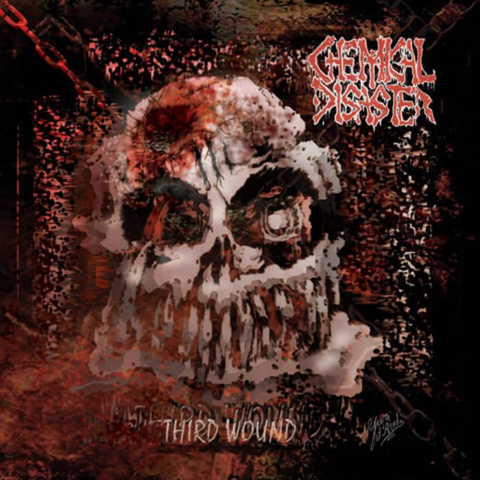 Third Wound cover art