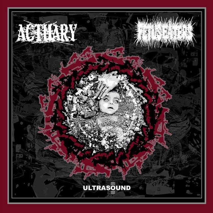 ULTRASOUND cover art