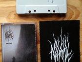 Nihill cassette photo