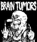 BRAIN TUMORS image