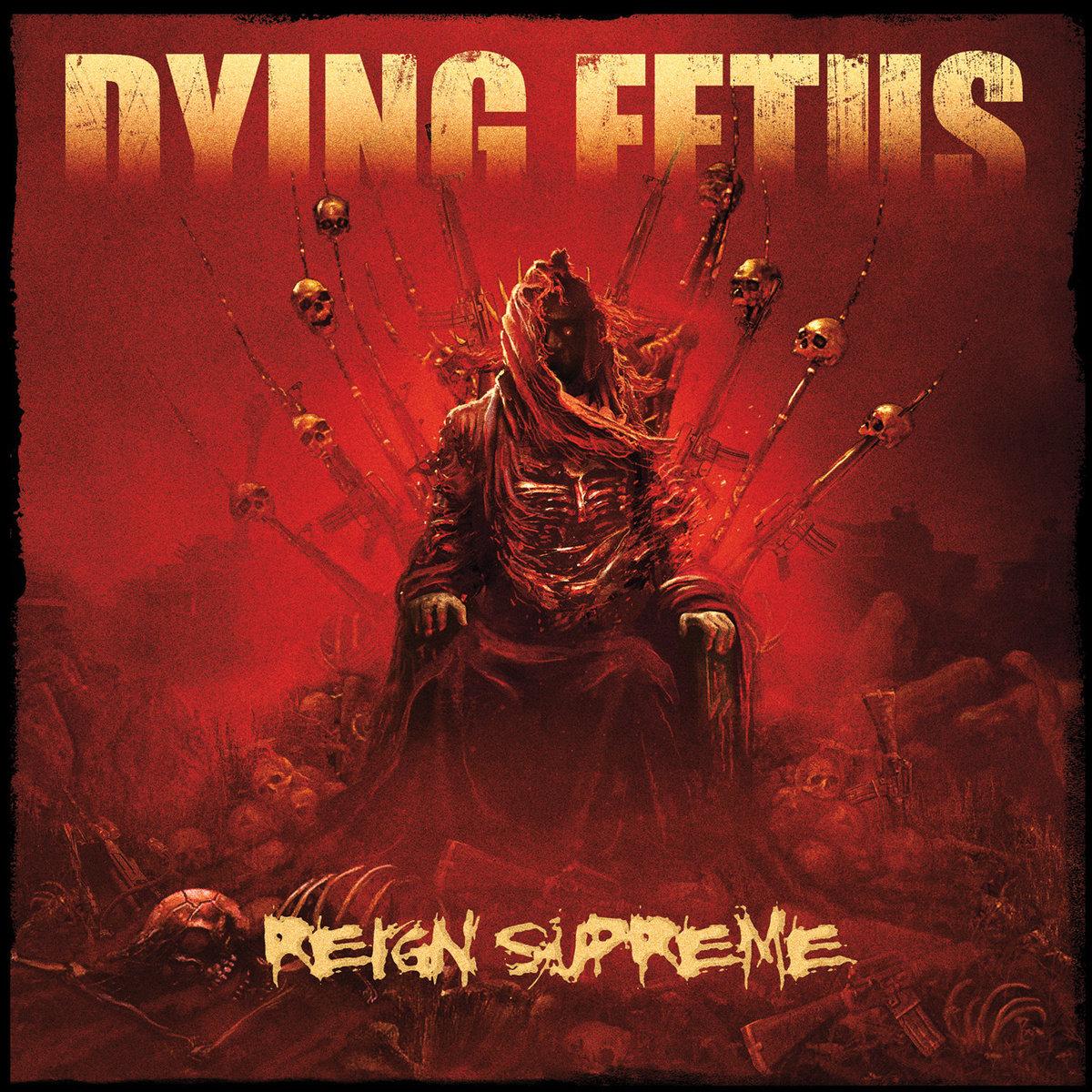 Aborted Fetus Band