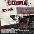 Edema image