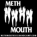 Meth Mouth image