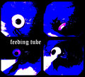 Feeding Tube image