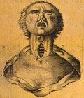 Laryngectomized image