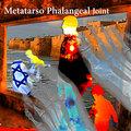 Metatarsophalangeal Joint image