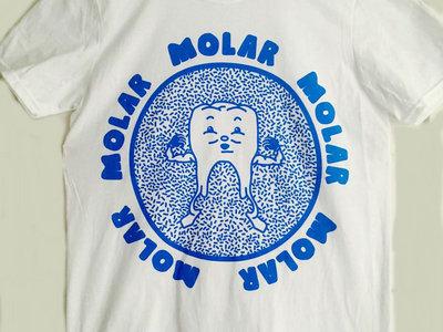 Strong MOLAR main photo