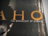 "IDAHO ""Broadcast Of Disease"" giclee fine art print photo"