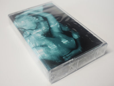 """Subaeris  """"Europa"""" - Cassette (courtesy of acid medical) main photo"""