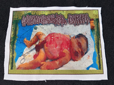 Decomposed Birth - The unborn Disgoregraphy Patch main photo