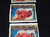 Decomposed Birth - The unborn Disgoregraphy Patch photo