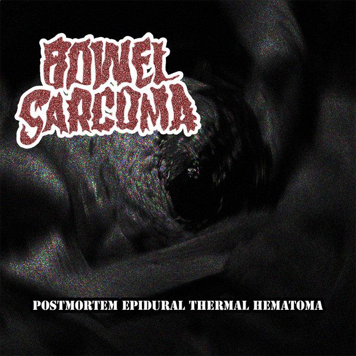 Postmortem Epidural Thermal Hematoma | Bowel Sarcoma