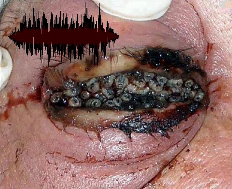 Grotesque Excretion Of Cranial Worms Through Orifices Lacking A