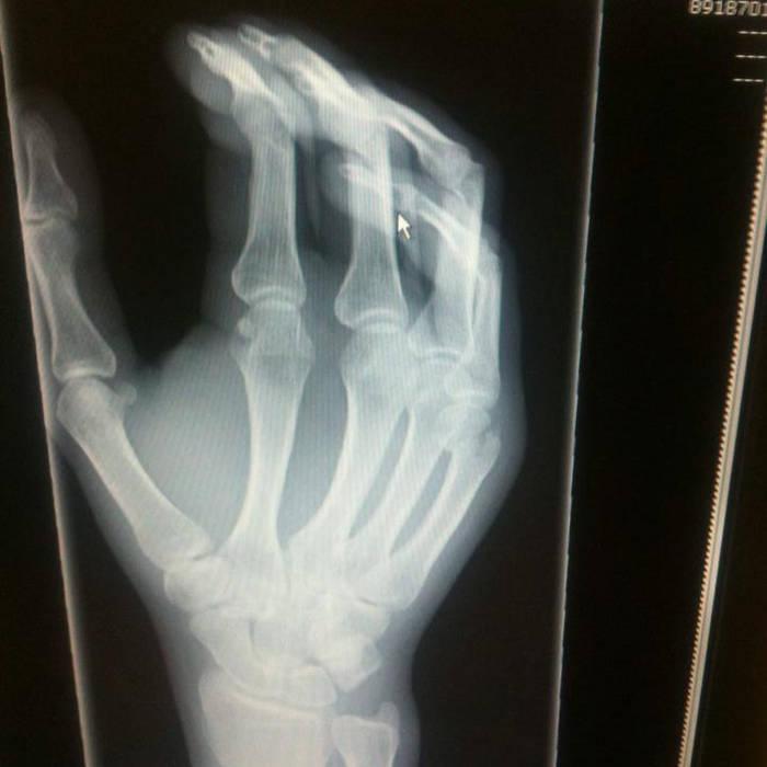 Haemo Sapiens – Hand