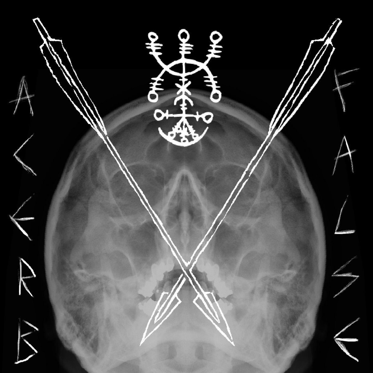 Spiral Fracture Paragraphs