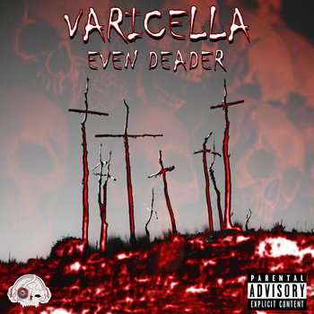 Even Deader by Varicella