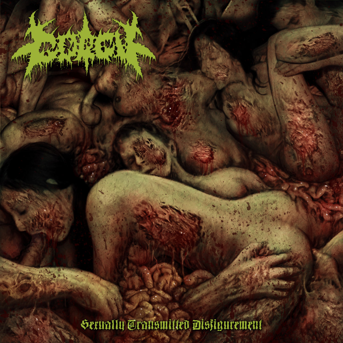 Gorgy - Sexually Transmitted Disfigurement (2018)