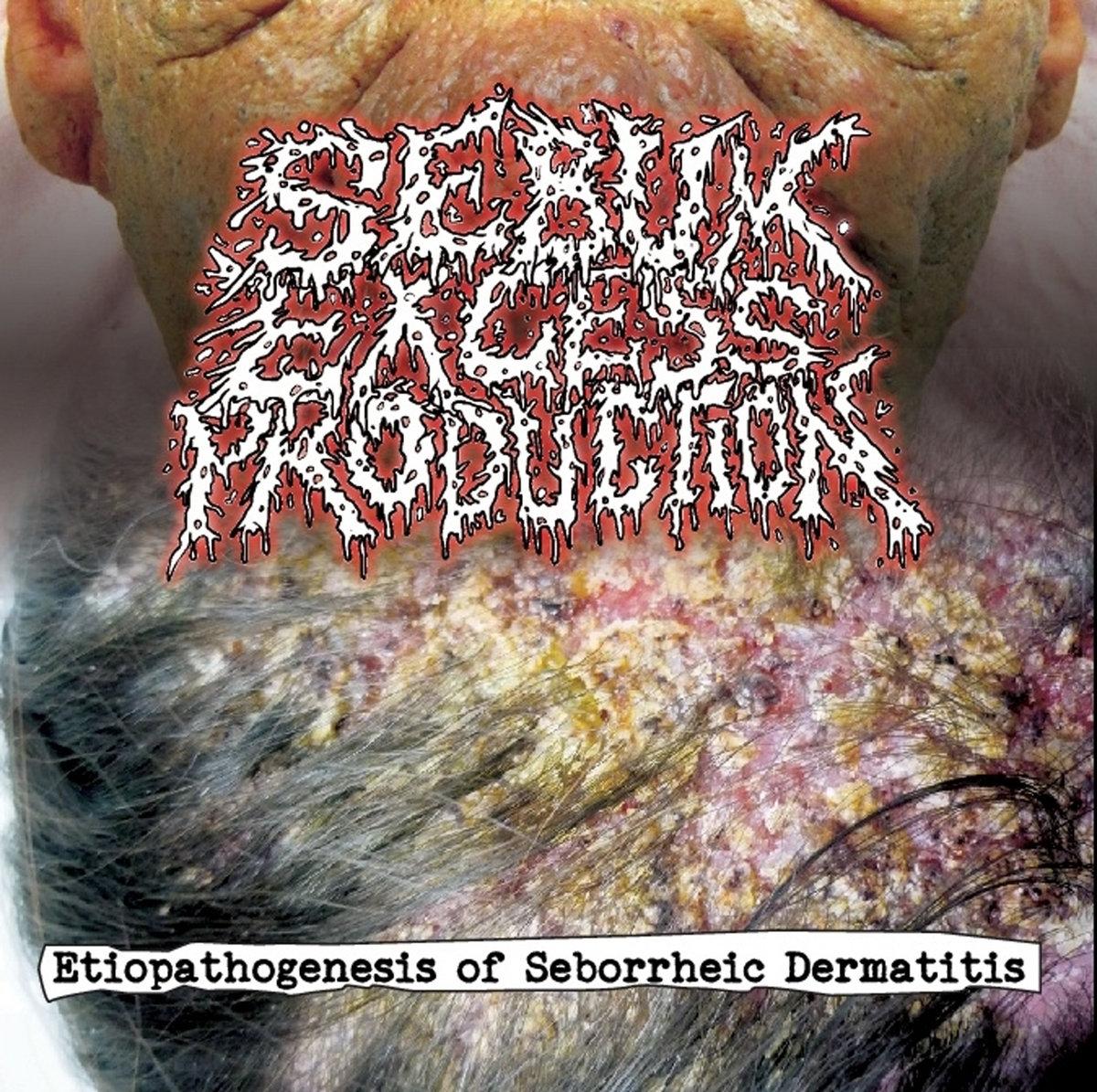 Sebum Excess Production - Etiopathogenesis Of Seborrheic Dermatitis