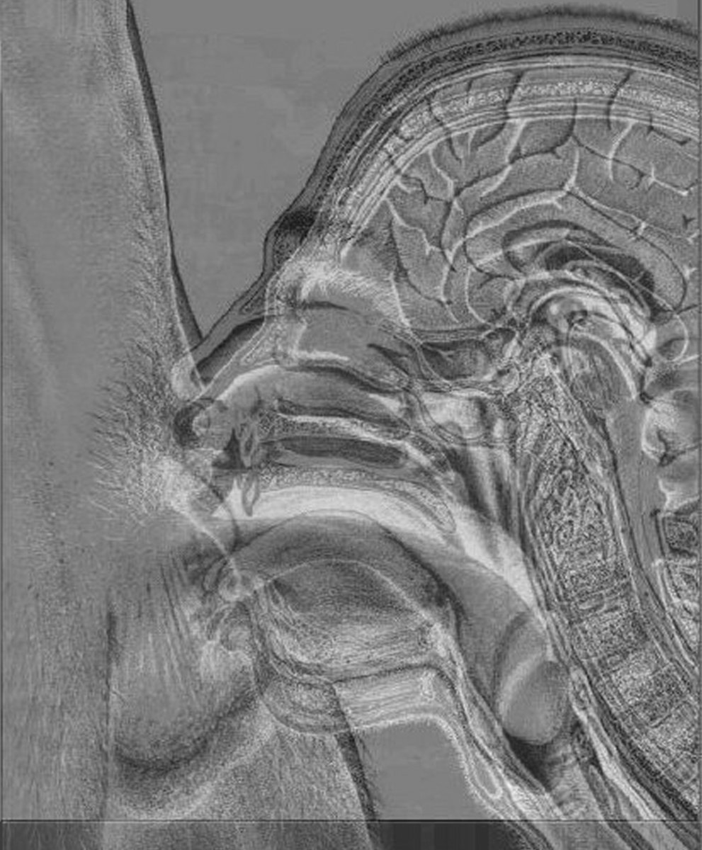 Canon From Anatomy Of Melancholy | Thirdorgan