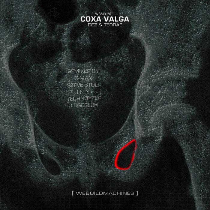 Coxa Valga | webuildmachines