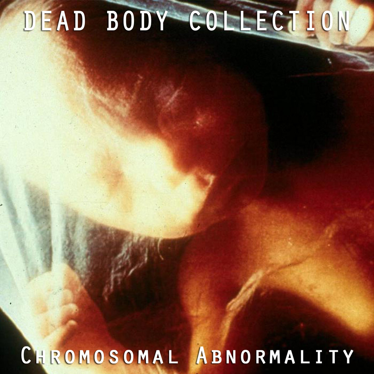 XX Male Syndrome | Dead Body Collection