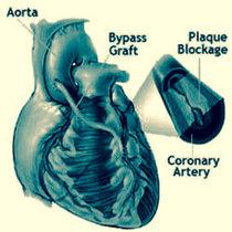 Open Heart Surgery cover art