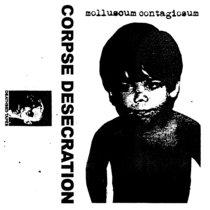 Molluscum Contagiosum cover art